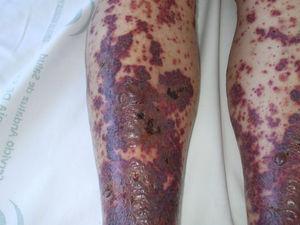 Areas extensas de confluencia, flictenas y algunas ulceraciones por pérdida de la epidermis.