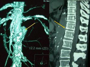 Caso clínico 2. A la izquierda puede observarse una reconstrucción bidimensional del aneurisma aórtico abdominal del paciente, mediante TAC. A la derecha, se observa la erosión vertebral que el mismo aneurisma ocasionaría sobre los cuerpos vertebrales.