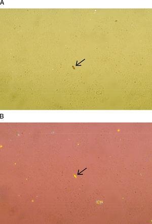 La fotografía muestra cristales de hematoidina, en la que se observa su forma rectangular. Con el microscopio de luz visible se observan de color café u oro 400× (A), en tanto que con el microscopio de luz polarizada se pueden observar con birrefringencia positiva o negativa 400× (B).