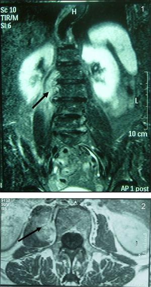 Resonancia magnética lumbar: se identifica una lesión que infiltra la musculatura del psoas derecha de aproximadamente 4,9cm y en íntimo contacto con las vértebras L2-L3.