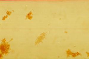Cilindro granuloso en SU (400×).
