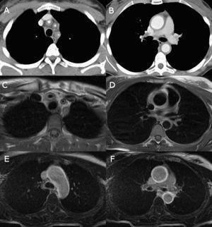 Enfermedad de Takayasu. Cortes axiales de mediastino superior y medio de TAC con contraste (A-B), RM con secuencia doble-IR (C-D) y secuencia de realce tardío (E-F). Se identifica un engrosamiento concéntrico de las paredes vasculares del origen de los troncos supra-aórticos, aorta ascendente y descendente. Las imágenes de realce tardío en RM (E-F) demuestran una intensa captación del cayado y aorta ascendente y descendente, signo de actividad de la enfermedad.
