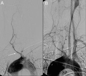 Paciente con enfermedad de Takayasu que debutó con un ictus hemisférico izquierdo. A) El estudio angiográfico urgente demostró una oclusión en el origen de la carótida común y subclavia izquierdas. Solamente se identifica el troncobraquiocefálico (flecha), que presenta una marcada estenosis sin continuidad con las arterias carótida común y subclavia derechas. B) Se recanalizó la carótida común y subclavia izquierdas con implantación de stents y se realizó fibrinolisis intracraneal con muy buena evolución clínica.