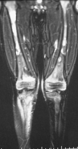 Imagen de RM de miembros inferiores: alteración en la intensidad de la señal de la médula ósea que afecta fundamentalmente a la metáfisis femoral distal, metáfisis proximal peroneal y tibial derechas, con afectación de diáfisis femoral bilateral.
