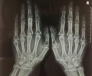 Radiología posteroanterior de las manos, en la que destaca la afectación de la tercera falange de la mano izquierda, siendo el resto de la imagen radiográfica normal.