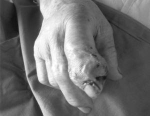 Artritis séptica por S. lugdunensis, con afectación de la interfalángica distal del segundo dedo de la mano derecha.