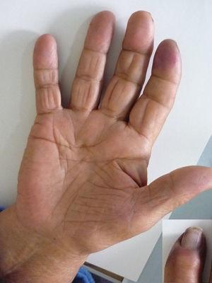 Visión palmar de la mano derecha y detalle del índice derecho.
