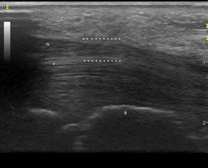 Corte longitudinal del nervio mediano derecho. (Imagen obtenida con ecógrafo General Electrics LOGIC e, con un transductor linear de 8-12 mHz usando para esta imagen una frecuencia de 12 mHz). B: hueso grande; N: nervio mediano; T: tendones flexores de la mano; *: zona de compresión.