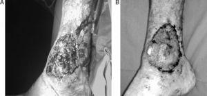 A) Pioderma gangrenoso en tobillo derecho. B) Mejoría de la lesión tras tratamiento con infliximab.