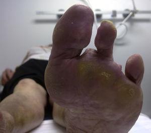 Amputación de varios hortejos del pie izquierdo.