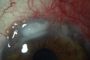 Queratitis ulcerativa periférica. Se observan dos áreas de lisis estromal corneal periférica superior.