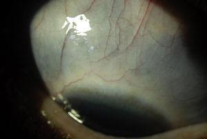 Escleromalacia. Se observa la esclera adelgazada que da un aspecto azulado al sector superior.