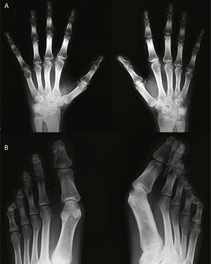 Radiografía de manos (A) en la que se observa reacción perióstica en radio. Ensanchamiento distal con cambios hipertróficos en los penachos y áreas de osteolisis en los mismos, de las que es un buen ejemplo el cuarto dedo de la mano derecha. Desmineralización yuxtaarticular. Radiografía de pies (B) en la que se observan marcados cambios destructivos en falanges distales, algunas con morfología aplanada y penachos distales hipertróficos con proliferación ósea. Marcada deformidad de los dedos en palillo de tambor.