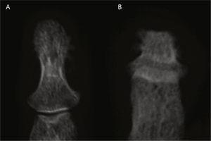 Imagen comparativa de falange distal de la mano (A) y del pie (B); en la primera se observan cambios proliferativos y en la segunda cambios destructivos marcados con morfología aplanada.