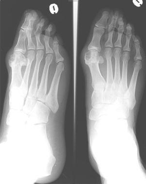 Radiografía del pie izquierdo anteroposterior y oblicua: se observan erosiones marginales de bordes bien delimitados en la cabeza del primer metatarsiano, con aumento de partes blandas adyacente. El espacio articular y la densidad del resto del hueso subcondral están conservados.