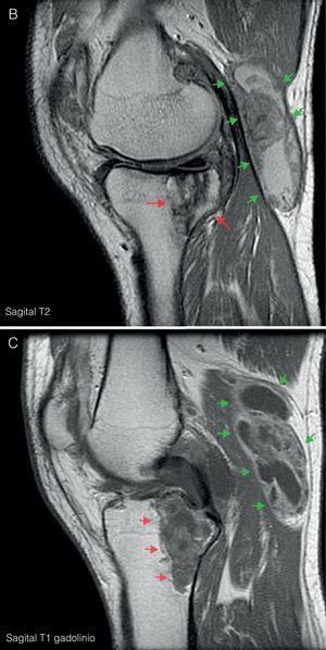A) RM de rodilla izquierda corte coronal en T1. Muestra proliferación sinovial difusa hipointensa, con erosiones óseas en el margen posterolateral del cóndilo femoral (flecha azul) y en escotadura intercondílea. Lesión lítica hipointensa en epífisis proximal tibial con un diámetro máximo de 5cm (flechas rojas). B) Corte sagital en T2. Se observa un aumento heterogéneo de señal a nivel de la lesión lítica en epífisis tibial (flechas rojas); junto con un gran quiste de Baker situado por detrás del vientre muscular del gemelo interno (flechas verdes), con zonas de alta y baja señal, correspondientes a hipertrofia sinovial. C) Corte sagital en T1 con Gd. Tras la administración de gadolinio se objetiva realce periférico a nivel de la lesión lítica tibial (flechas rojas) y del quiste de Baker (flechas verdes).