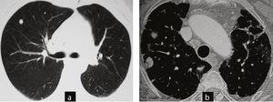 Casos 4 y 5. Distintos contextos clínicos: biopsia quirúrgica o control de imagen. a) Caso 5: tomografía computarizada de tórax: nódulos inespecíficos, en paciente sin diagnóstico de patología articular y con clínica respiratoria. Se hizo diagnóstico de granulomas necrotizantes con biopsia quirúrgica. La paciente desarrolló una artritis reumatoide un año después. b) Caso 4: tomografía computarizada de tórax: nódulos con semiología radiológica típica de nódulos reumatoide: redondeados, subpleurales, múltiples, en paciente con artritis reumatoide y neumopatía intersticial asociada. Se plantea seguimiento con controles de imagen.