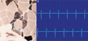 Descargas repetitivas de alta frecuencia. A) El potencial se origina espontáneamente en la fibra muscular número 1 y por transmisión efáptica, por contigüidad, pasa a la 2, y sucesivamente a la 3, 4, 5, 6 y de nuevo a la 1. B) El electromiograma recoge un potencial polifásico que se inicia y acaba bruscamente, que es siempre el mismo y dispara rítmicamente, y que tiene característicamente un sonido como el de una máquina, «chaca-chaca-chaca».
