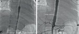 A y B) Angioplastia. Colocación de 2 stents largos, que cubren la zona de estenosis severa. Gradiente posquirúrgico: ninguno. Gradiente en la zona de estenosis renal: 10mmHg. No se realiza procedimiento en la arteria subclavia izquierda ni en las arterias renales.