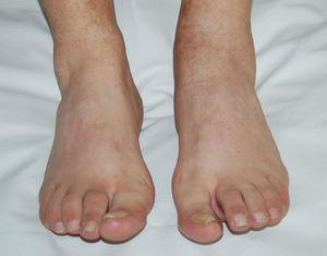 Tumefacción difusa de segundo dedo de pie derecho (dactilitis) y artritis de tobillo izquierdo.