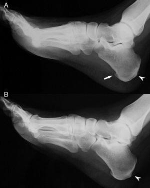 Radiografías de pies que muestra en el derecho (A) un espolón calcáneo (flecha) y entesofitos aquíleos bilaterales (cabezas de flecha).