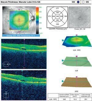 Tomografía de coherencia óptica del ojo derecho de la paciente que muestra discreto engrosamiento de la fóvea, con espacio hiporreflectivo en capas externas de la retina (flechas).