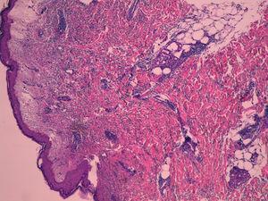 Síndrome de Sweet: moderado edema en la dermis papilar y denso infiltrado de neutrófilos en la dermis reticular.