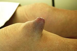 Vista lateral de la rodilla derecha de la paciente.