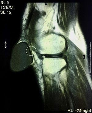 Resonancia magnética de la rodilla. Dentro del círculo se identifica el pliegue de la pared posterior del quiste.
