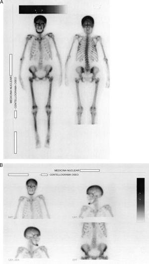 A, B) Centellograma óseo corporal total con 99mTc que muestra hiperfijación a nivel del cráneo, la región maxilofacial, los arcos costales superiores y los huesos largos.