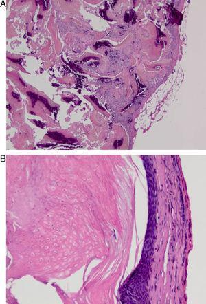 A) Tumoración de la matriz pilosa bien delimitada, no encapsulada. Proliferación celular en la que se distinguen lóbulos formados por células de aspecto basaloide, queratinización y calcificaciones distróficas (hematoxilina-eosina). B) A mayor detalle, proliferación de células epitelioides basófilas que sufren una queratinización abrupta y presencia de células eosinófilas llamadas células fantasma (hematoxilina-eosina).