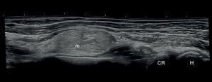 Vista longitudinal de ecografía del codo y el antebrazo izquierdos. CR: cabeza del radio; H: húmero; m: masa.