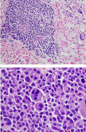 Biopsia de ganglio axilar derecho que muestra un linfoma plasmablástico con tinción hematoxilina-eosina.