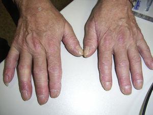Manos de mecánico: lesiones hiperqueratósicas y fisuras en cara lateral y palmar de los dedos.