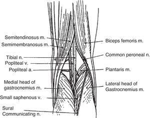A simple drawing of the popliteal fossa. Baker cysts occur by distention of a communicating gastrocnemius–semimembranosus bursa. This bursa is placed in the junction of the middle third and the lateral 2/3 of the popliteal fossa.