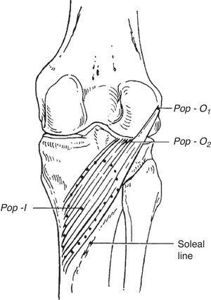 Popliteus muscle. Two insertions are shown, in the lateral femoral condyle below the epicondyle and in the back of the lateral meniscus. Its insertion is in the posterior surface of tibia above soleal line.