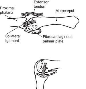 Upper panel. MCP joint showing the metacarpophalangeal joint (MCP) in neutral. The collateral ligament is relaxed. Note tibrocartilaginous palmar plate in the palmar aspect of the joint. Lower panel. The lateral collateral ligament becomes taut in flexion. From A Companion to Medical Studies, Volume 1, Ed. by Passmore R and Robson JS, 2nd Edition, Oxford, Wiley/Blackwell 1976, p. 23.16, with permission.