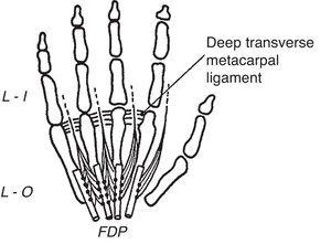The lumbrical muscles are shown. They are palmar, while the dorsal and the palmar interossei are dorsal, to the transverse metacarpal ligament. From A Companion to Medical Studies, Volume 1, Ed. by Passmore R and Robson JS, 2nd Edition, Oxford, Wiley/Blackwell 1976, p. 23.20, with permission.