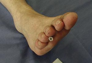 Needle insertion for steroid injection in Morton's neuroma. Technique learned from Dr. Lilia Andrade Ortega, Mexico City.