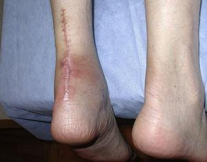 Patient 1. Disfiguring scar after surgical repair of a fluoroquinolone/corticosteroid-related non-insertional Achilles tendinopaty leading to rupture.