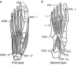 From the plantar surface down, the 1st and the 2nd muscle layers of the foot muscles are shown. 1st layer: ADM, abductor digiti minimi; AbH, abductor hallucis; FDB, flexor digitorum brevis; O, origin; I, insertion. 2nd layer: FDA, flexor digitorum accesorius; FHL, flexor hallucis longus; FDL, flexor digitorum longus; L, lumbricals; O, origin; I, insertion.