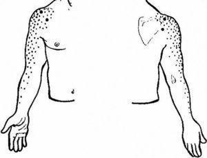 This sketch shows with dots pain radiation from the glenohumeral joint and the rotator cuff (C5 and C6-derived structures). The left half of the picture shows the front side and the right side of the picture the back side.