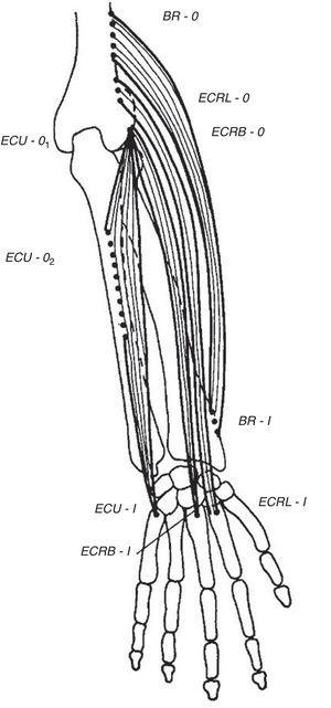 The extensor muscles of the wrist. BR=brachioradialis, ECRL=extensor carpi radialis longus, ECRB=extensor carpi radialis brevis. ECU=extensor carpi ulnaris. O=origin, I=insertion.