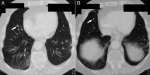 Tomografía computarizada de tórax mostrando émbolos de cemento (flechas) en bifurcaciones (A) y ramas distales (B) de la arteria pulmonar derecha a nivel del lóbulo inferior.