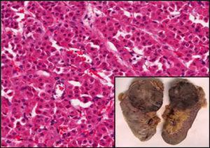 Macroscopia: tumoración nodular pardo-rojiza bien delimitada de 8×7cm con zonas centrales de aspecto fibroso. Microscopia: proliferación sólida de células monomorfas con escasa atipia nuclear y amplio citoplasma eosinófilo de aspecto oncocítico.