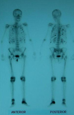 Gammagrafía con hipercaptación múltiple en las costillas, cadera izquierda fracturada, calcáneo izquierdo y articulaciones periféricas.