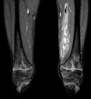 The MRI study revealed the suspected pyomyositis.