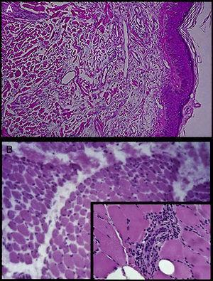 A) Biopsia de piel: espongiosis ligera y algunas mitosis en dermis en espacios claros por edema e infiltrado moderado difuso por linfocitos, células plasmáticas y escasos eosinófilos, distribuidos en dermis papilar y en la periferia de los anexos. B) Biopsia de músculo: infiltrados inflamatorios de predominio de tejido conjuntivo perimisial y de los vasos de pequeño calibre, que presentan lesión de endotelio y fibrosis (acercamiento).
