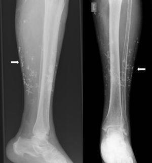 Radiografía simple de la extremidad inferior izquierda, que muestra calcificaciones en tejido celular subcutáneo.