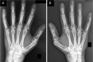 Radiografías anteroposterior de carpos izquierdo (A) y derecho (B) mostrando deformidad de Madelung bilateral.